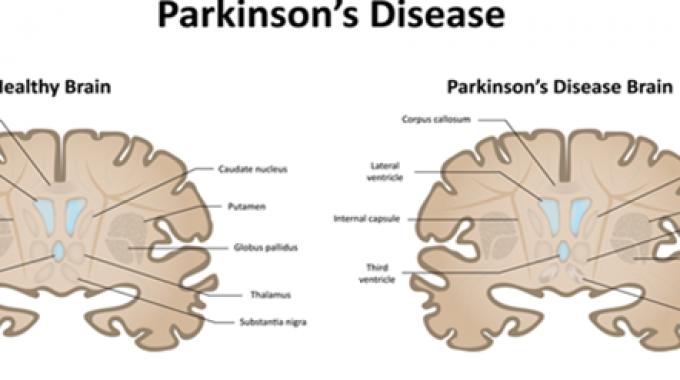 Was ist Parkinson