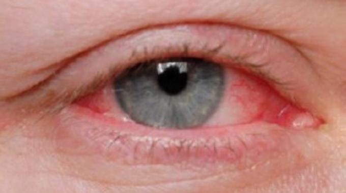 oogproblemen bij parkinson